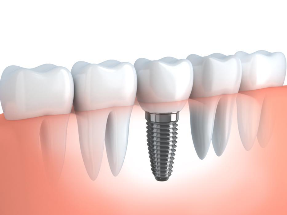 Dental implant diagram | Brentwood TN
