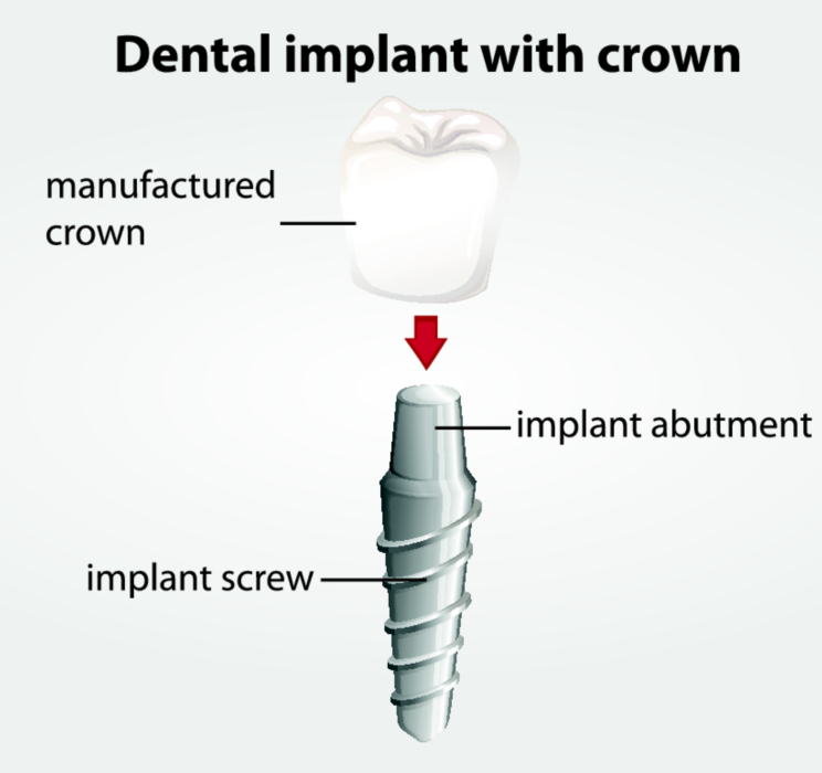 Dental Implant Diagram | Implants in Brentwood TN