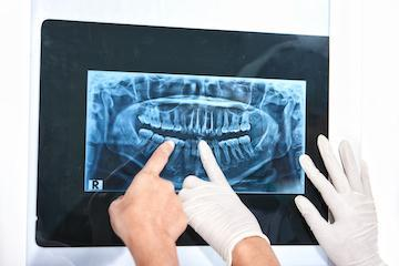 Digital X-Rays | Brentwood TN Oral Surgery