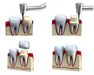 Dental Crowns Brentwood, TN