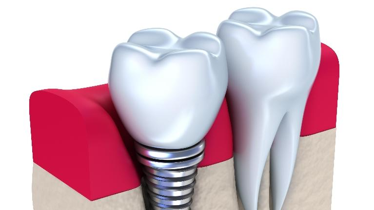 dental implant illustration | brentwood tn