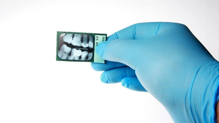 dentist holding x-ray | brentwood tn dentist