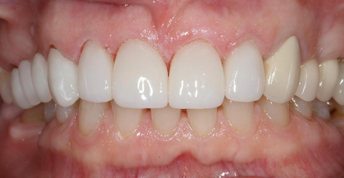 smile with dental crowns in brentwood tn