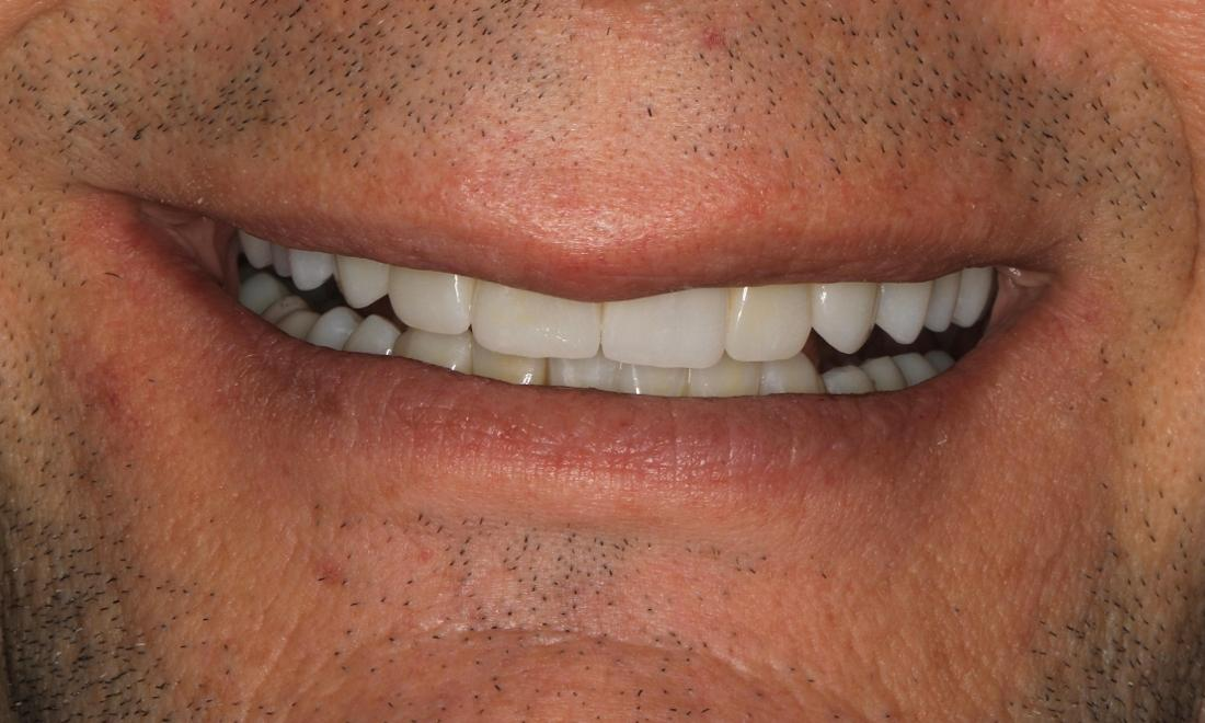 smile after full mouth rehab in brentwood