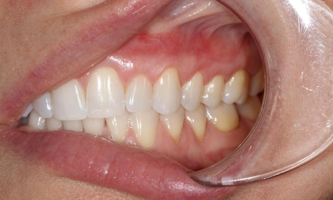 Pinhole graft used on receding gums | Dentist Brentwood TN