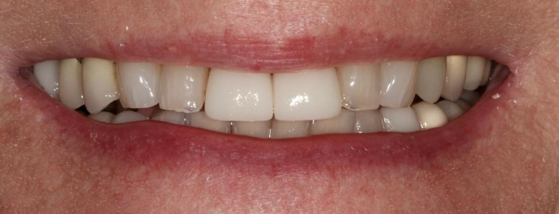 smile with replacement crowns in brentwood tn