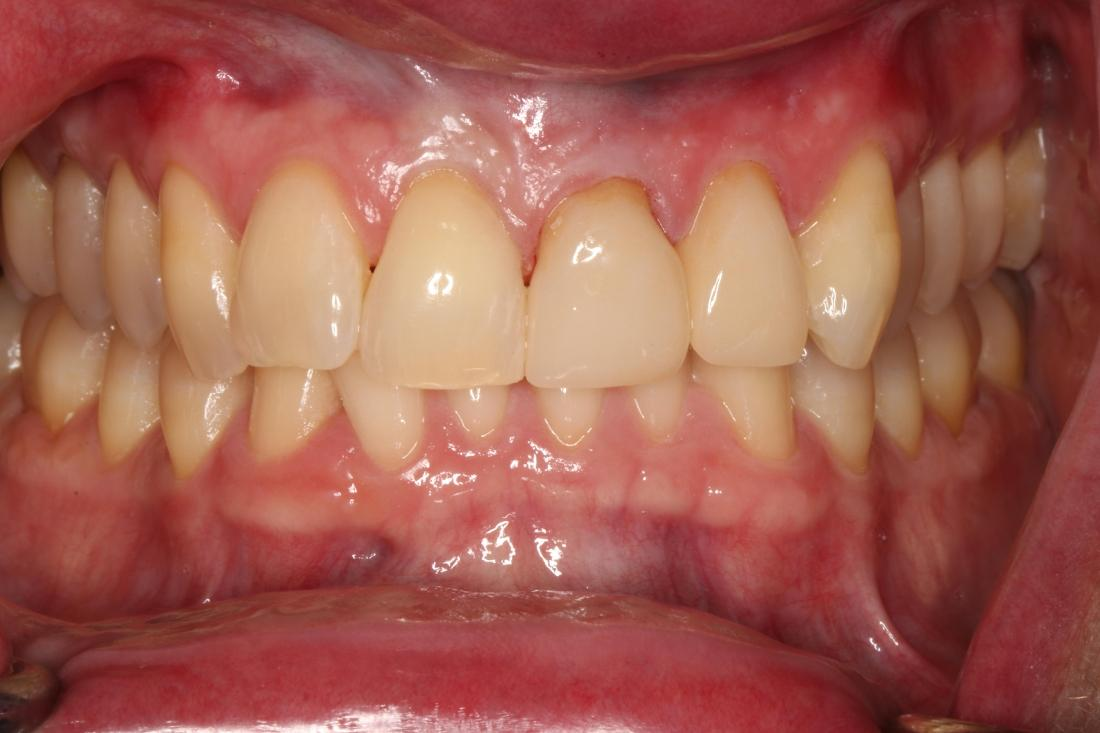 smile after dental crowns in brentwood tn