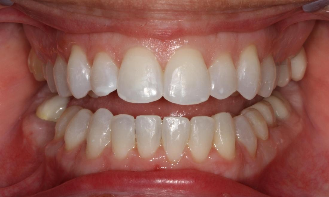 Six month smiles used to straighten teeth | Sullivan Dental Partners