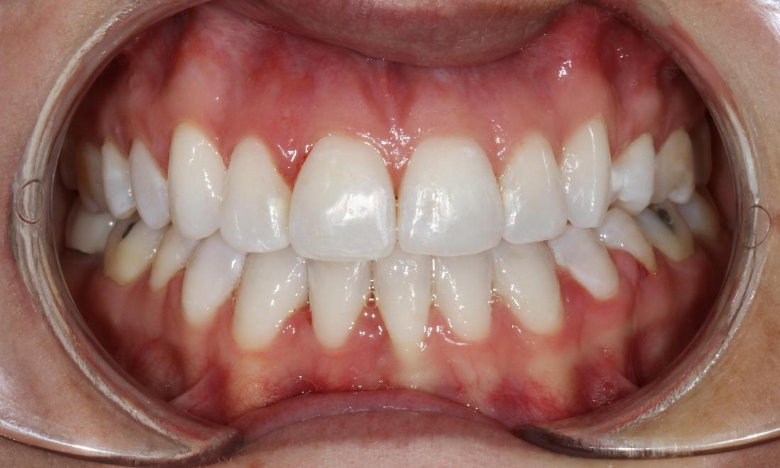 Six month smiles to correct small bite discrepancies | Dentist Brentwood TN