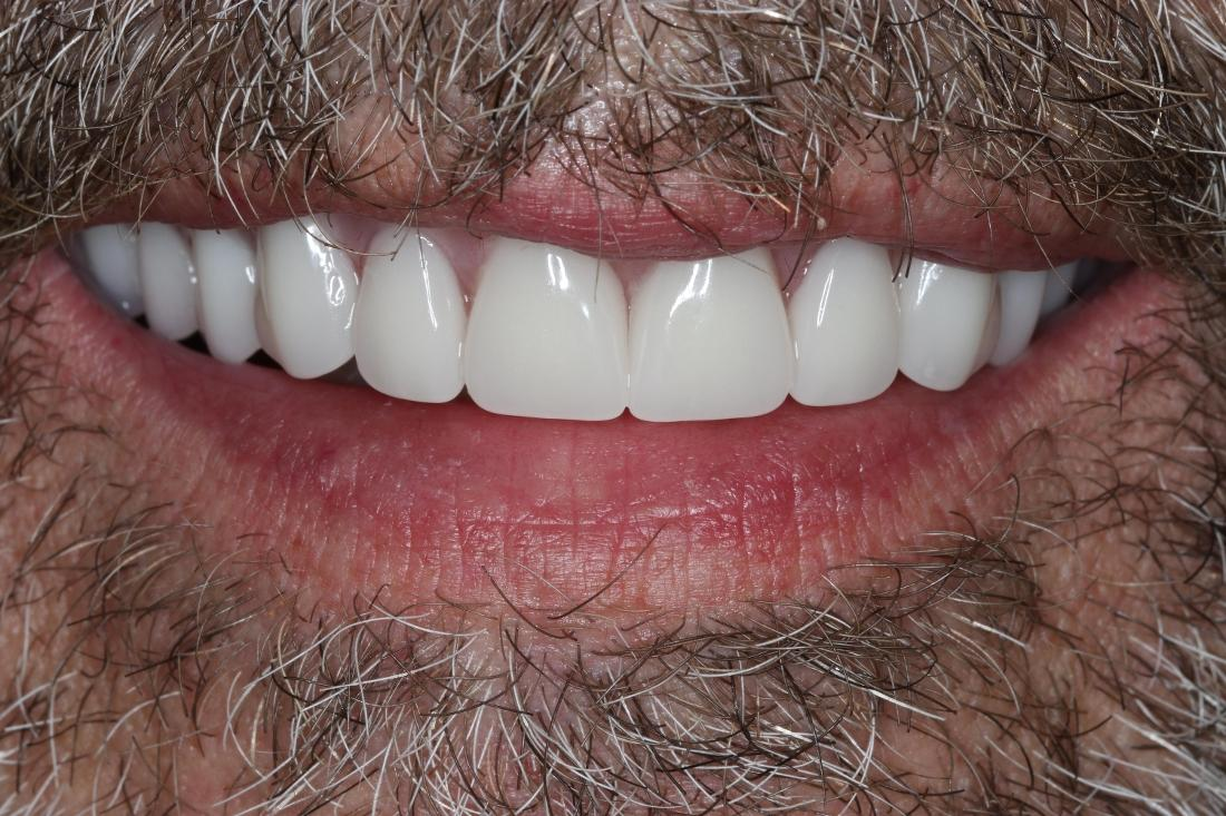 smile with dentures in brentwood tn