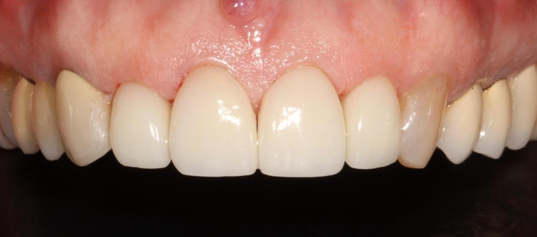 Dental veneers to correct tooth gap | Sullivan Dental Partners