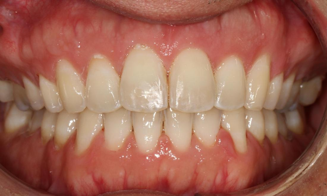 Six month smiles to straighten teeth | Dentist Brentwood TN