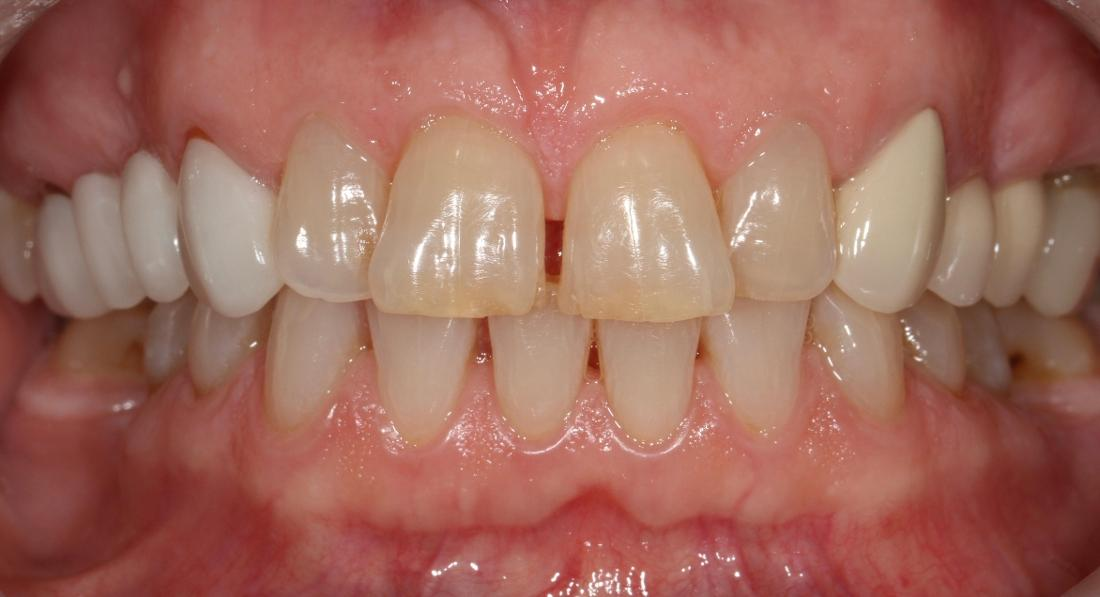 smile without dental crowns in brentwood tn