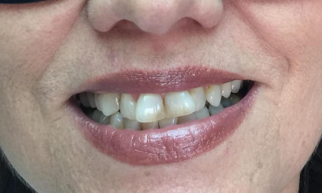 Crowded and discolored front teeth | Dentist Brentwood TN