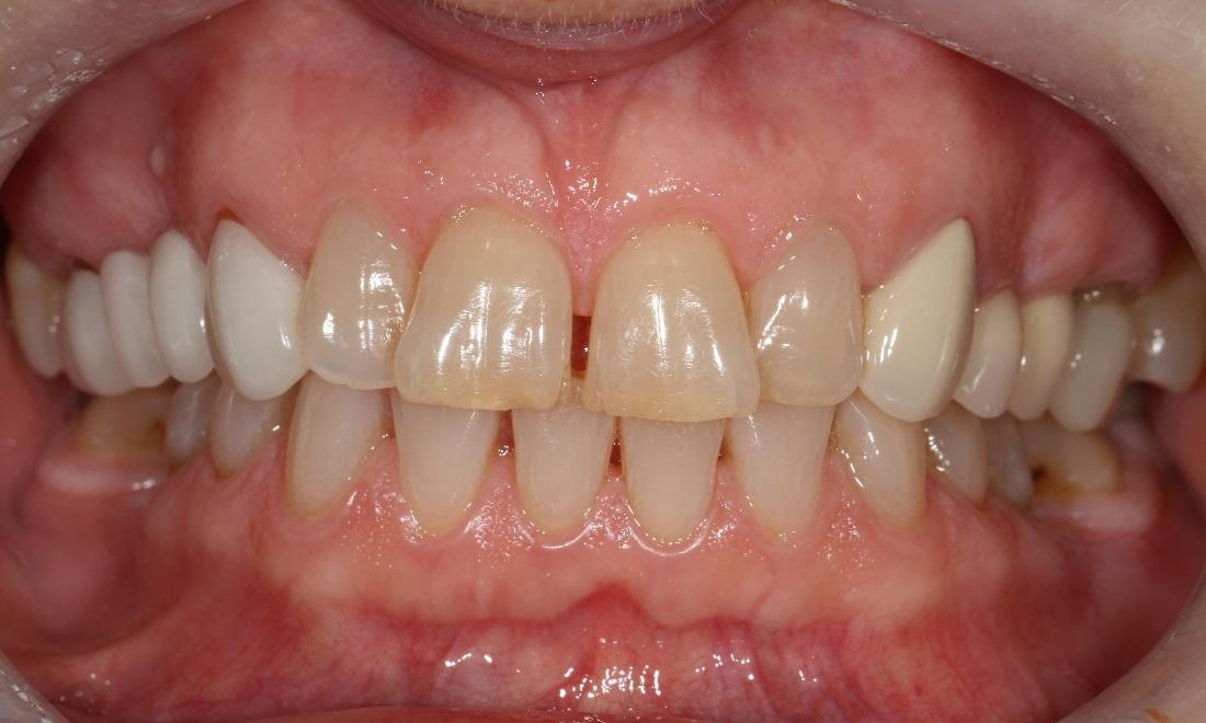 Discolored and misshapen front teeth | Sullivan Dental Partners