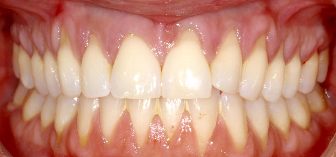 Severe gum recession | Sullivan Dental Partners