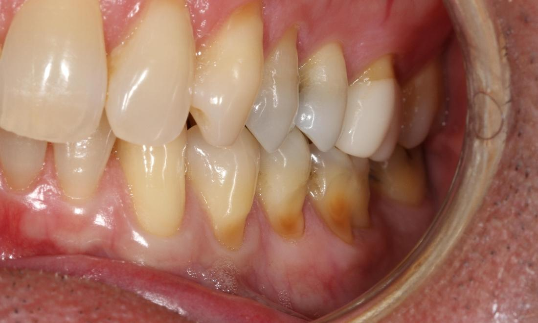 Gum recession on lower arch | Sullivan Dental Partners