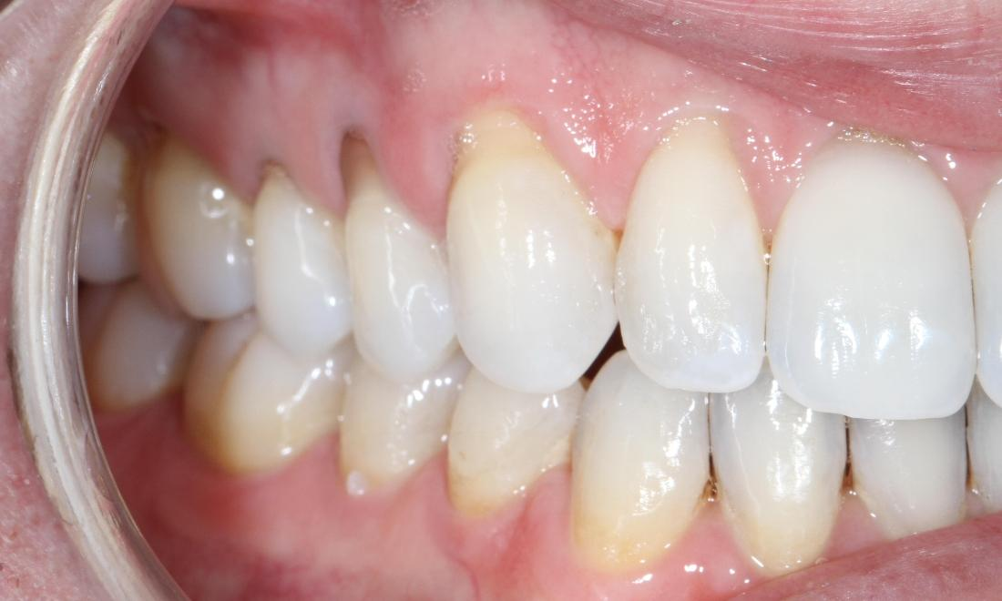 Upper right teeth with gum recession | Sullivan Dental Partners