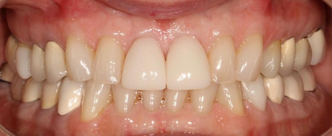 smile before dental crowns in brentwood tn