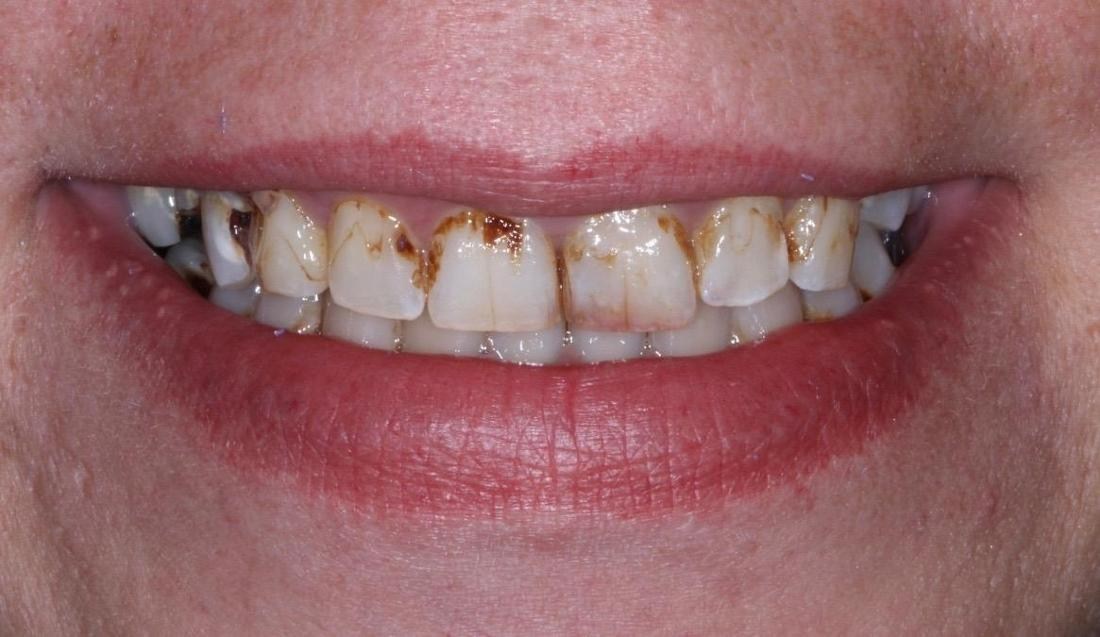 smile without upper dentures in brentwood tn