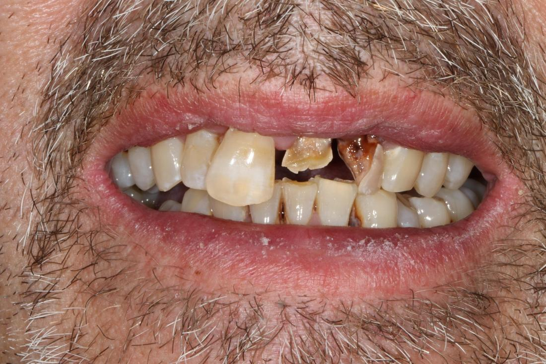 smile before locator denture in brentwood tn