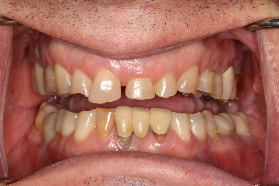 smile before full mouth rehab in brentwood tn