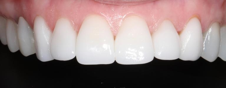 Cosmetic-Crowns-in-Brentwood-TN-After-Image