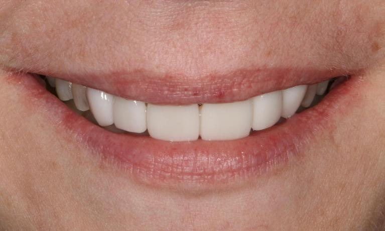 Cosmetic-Veneers-After-Image