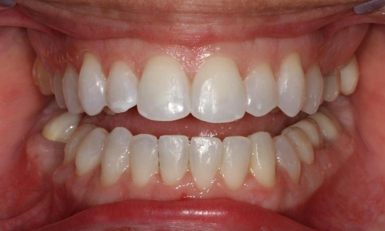 Six-Month-Smiles-in-Brentwood-TN-After-Image