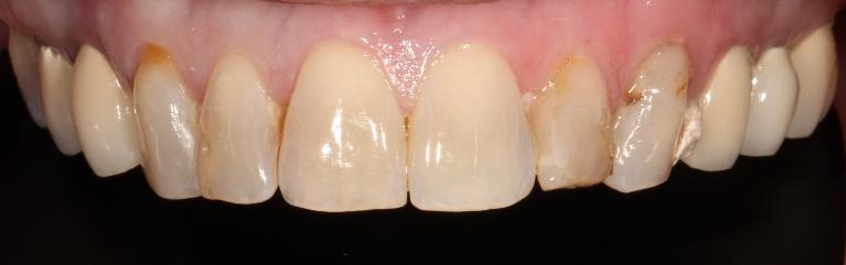 Cosmetic-Crowns-in-Brentwood-TN-Before-Image