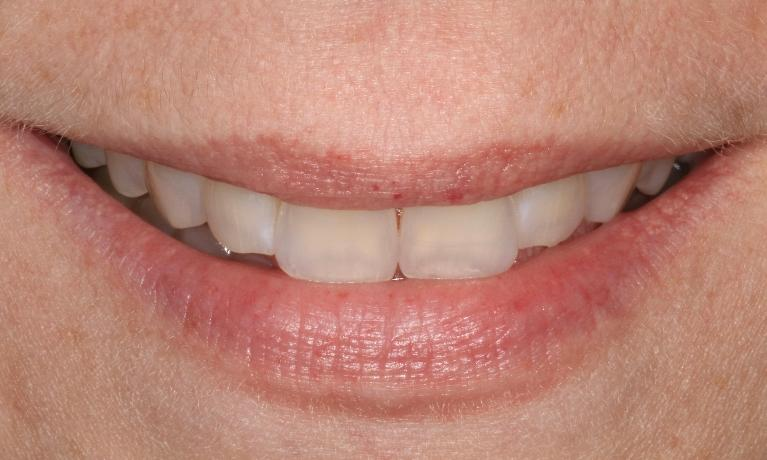 Cosmetic-Veneers-Before-Image