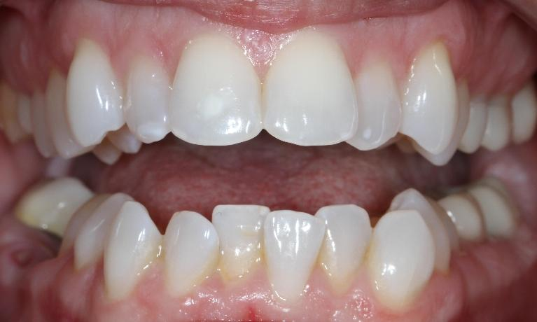 Six-Month-Smiles-in-Brentwood-TN-Before-Image